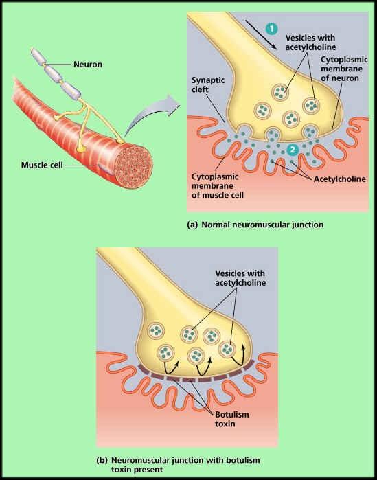 Foodborne Botulism being dispersed via the vascular system